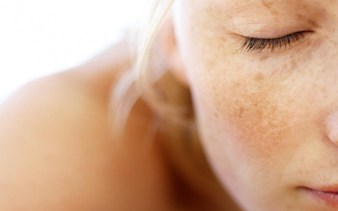 Jak se zbavit hnědých skvrnek? Co je hyperpigmentace ?