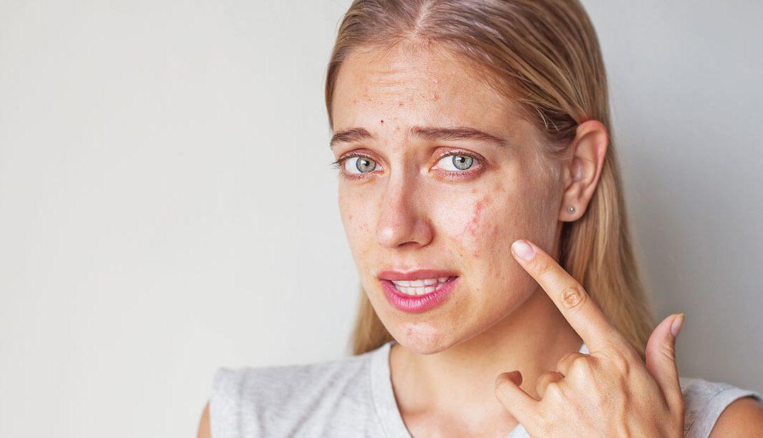 Jak se zbavit akné ve 4 krocích